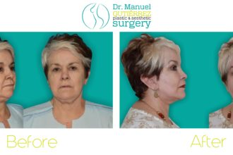 plastic surgery mexico