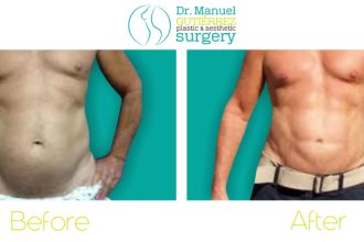 Abdominal Edging before and after
