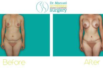 tijuana plastic surgery