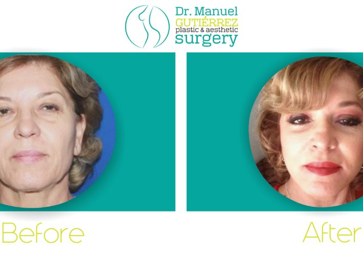 plastic surgery in tijuana mexico