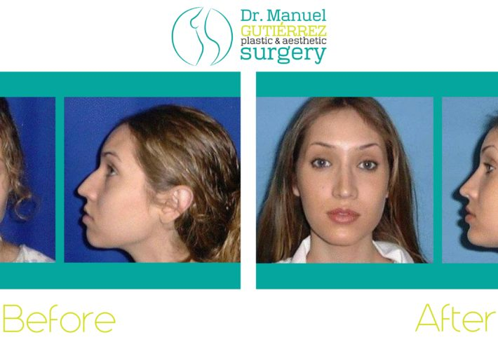nose surgery in mexico