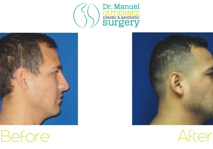 plastic surgery in tijuana