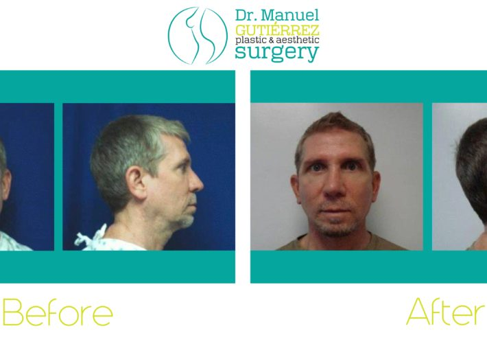 mexico plastic surgery for man