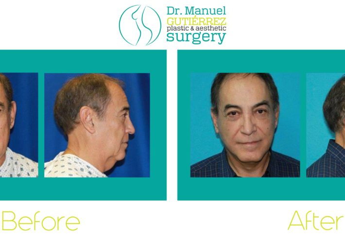 Facelift with Dr. Manuel Gutierrez