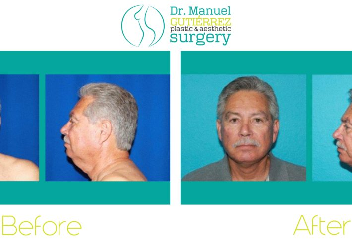 best plastic surgeon in tijuana