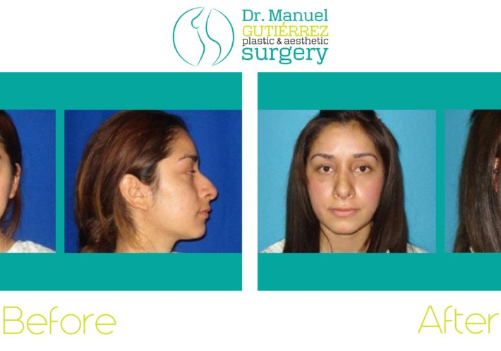 tijuana mexico nose surgery