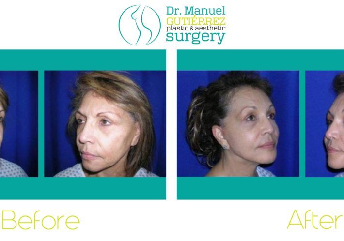 plastic surgeon Dr. Manuel Gutierrez