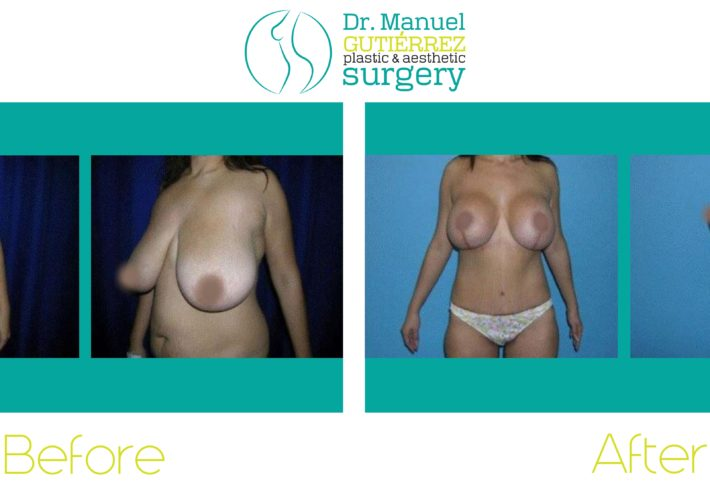 breast surgery in mexico
