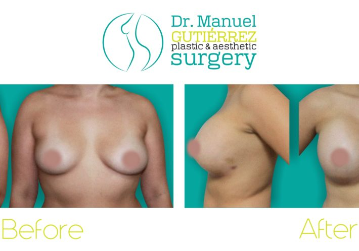 plastic surgery breast augmentation