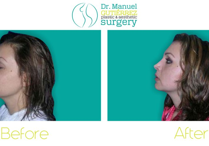 rhinoplasty mexico