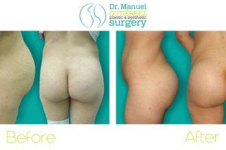 plastic surgery tijuana