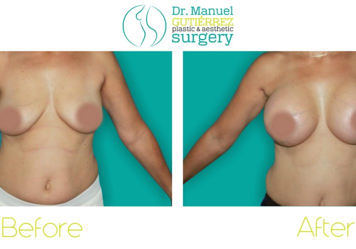 dr manuel gutierrez before and after patients