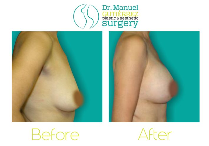 breast augmentation tijuana