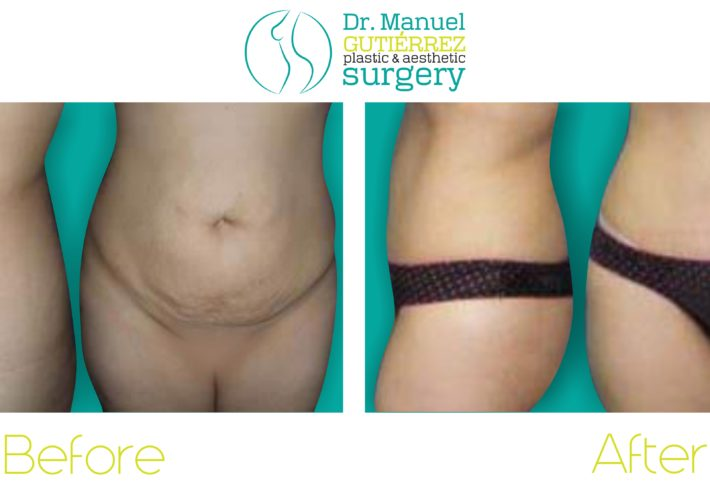 tummy tuck plastic surgery mexico