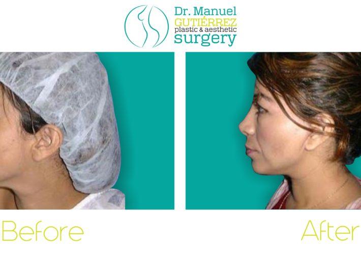 rhinoplasty plastic surgery tijuana