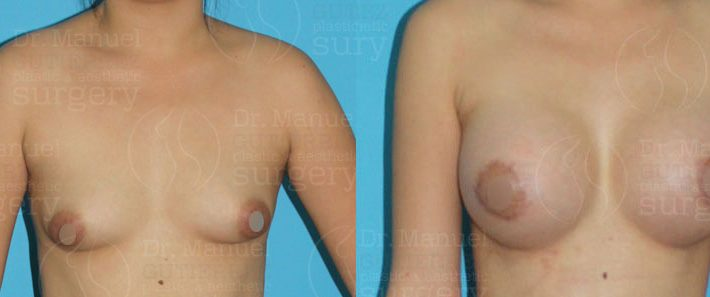 csm-breast-augmentation04
