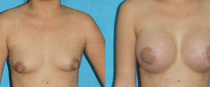 csm-breast-augmentation04