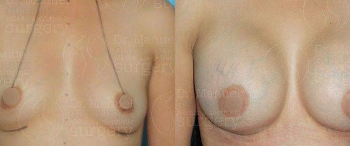 csm-breast-augmentation05